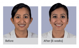 Earfold treatment before and after